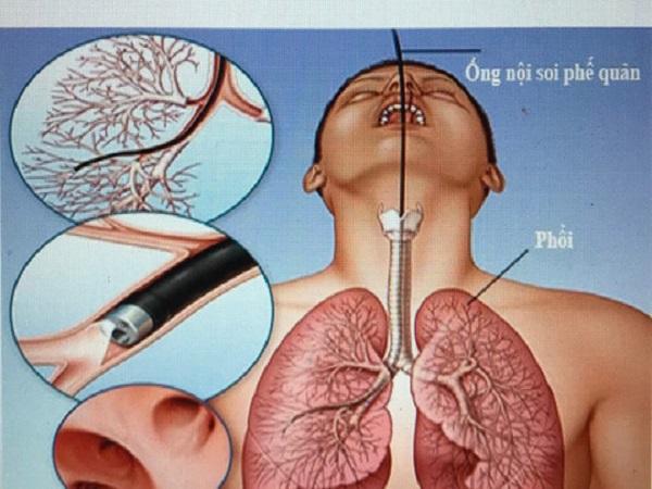 Nữ bệnh nhân tử vong sau nội soi phế quản do mất máu nhiều - Ảnh 1