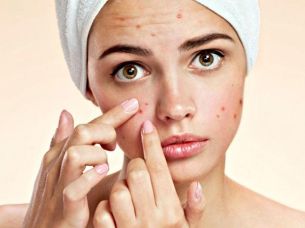 Cách chăm sóc da mặt không để lại thâm sau khi nặn mụn - Ảnh 1