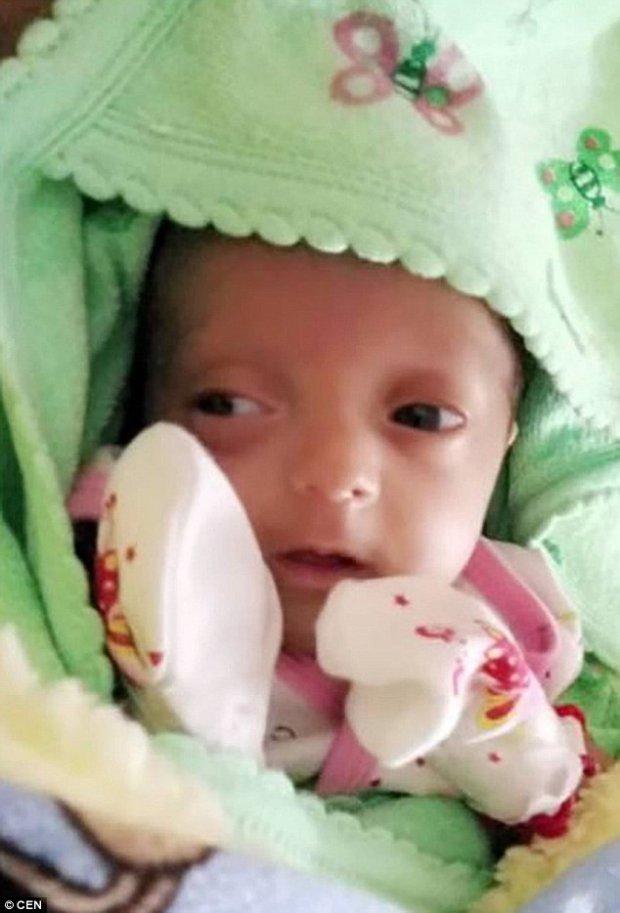 Bé gái sinh non nhỏ như hạt đậu sống sót kỳ diệu sau 4 tháng vật lộn với tử thần - Ảnh 3