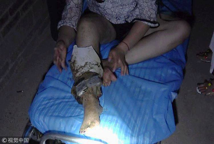 Cô gái say rượu kẹt chân trong bệ xí phải nhờ sự giúp đỡ của lính cứu hỏa - Ảnh 4