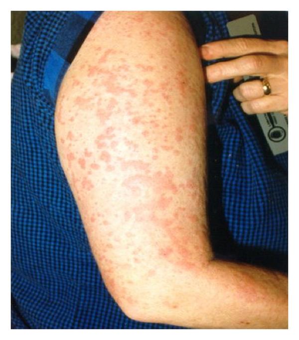 Mắc bệnh hiếm nổi đốm trên da, nam bệnh nhân sụt 10kg chỉ trong 1 tháng - Ảnh 2