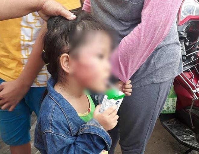 Điều tra nghi án bé gái 5 tuổi bị đánh nứt xương hàm - Ảnh 1