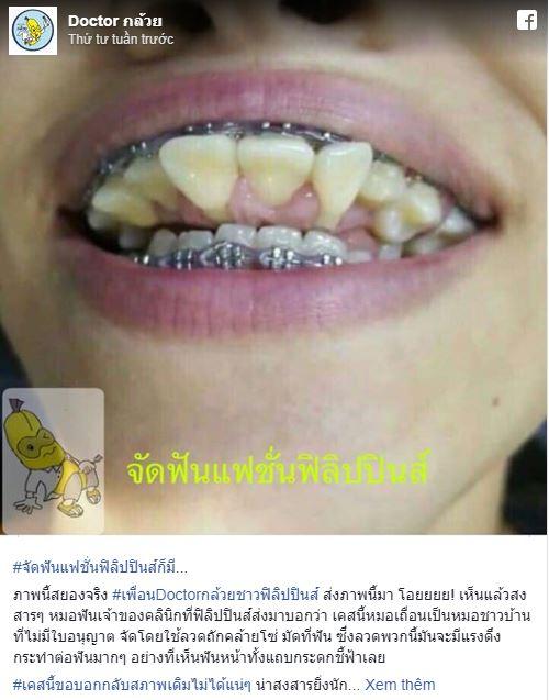 Sự thật hàm răng chỉa ngược của cô gái khiến nhiều người phát hoảng - Ảnh 1