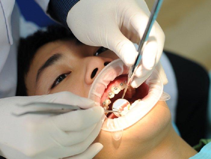 Sự thật hàm răng chỉa ngược của cô gái khiến nhiều người phát hoảng - Ảnh 3