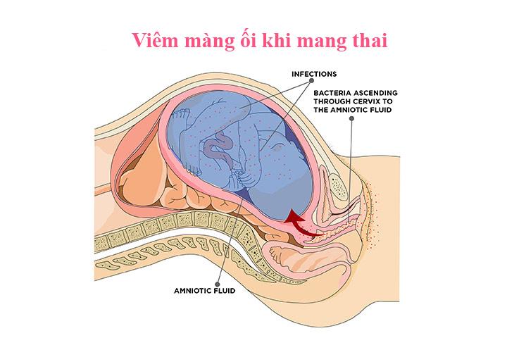 Viêm màng ối khi mang thai không có dấu hiệu rõ ràng để nhận biết