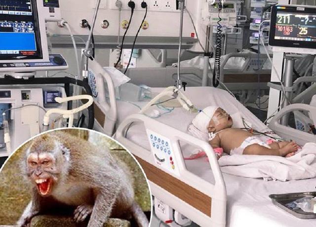 Bé 14 tháng tuổi bị khỉ cắn toạc da đầu, lún xương sọ - Ảnh 1