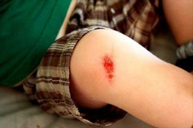 """Chàng trai tử vong sau khi cắt móng chân, bác sĩ nói """"nếu làm sớm điều này thì đã sống"""" - Ảnh 5"""