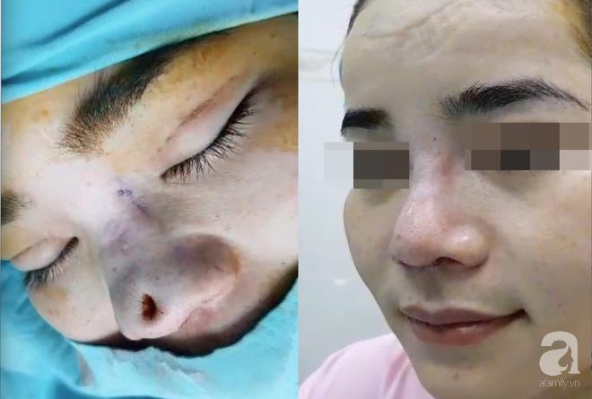 Cô gái 22 tuổi ở Bạc Liêu bị hủy hoại dung nhan vì đi nâng mũi bằng chỉ - Ảnh 3