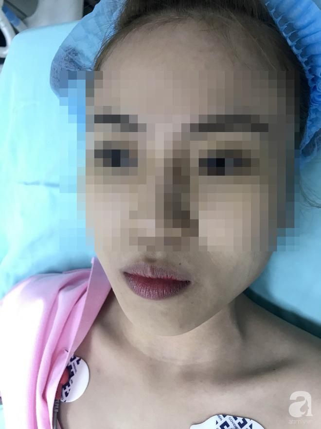 Cô gái 22 tuổi ở Bạc Liêu bị hủy hoại dung nhan vì đi nâng mũi bằng chỉ - Ảnh 4