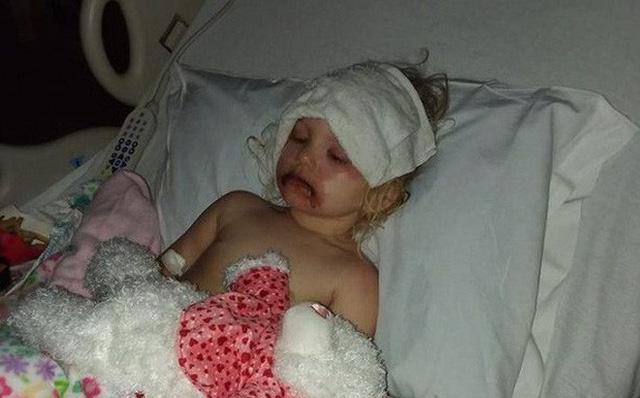 Bé 3 tuổi suýt mất mạng vì đồ chơi trang điểm và lời cảnh báo từ chuyên gia - Ảnh 1