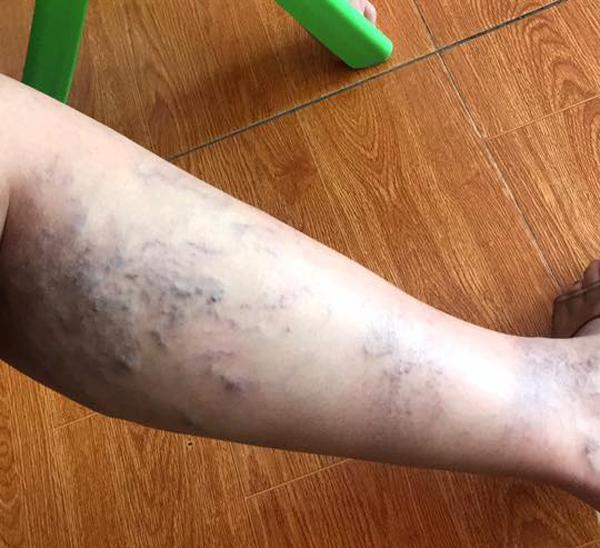 Mẹ bầu đăng ảnh tưởng chân xuống máu, bác sĩ nói 'đi khám ngay kẻo nguy' - Ảnh 2