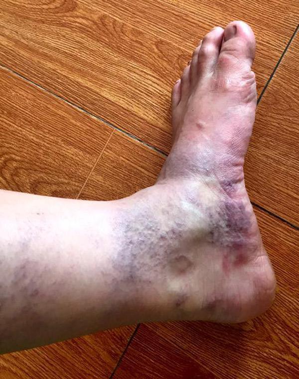 Mẹ bầu đăng ảnh tưởng chân xuống máu, bác sĩ nói 'đi khám ngay kẻo nguy' - Ảnh 3