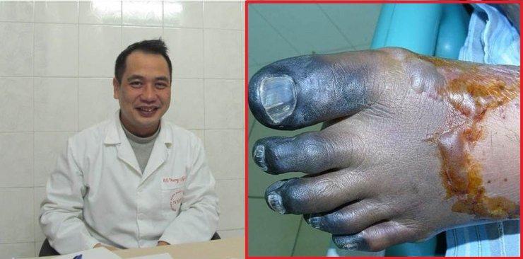 Gần chục người nhiễm liên cầu lợn bị hoại tử chân tay, suy thận chỉ vì ăn tiết canh, giết mổ lợn - Ảnh 1