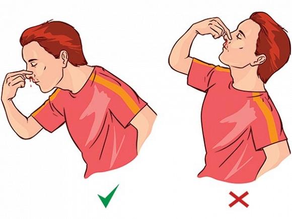 Bị chảy máu cam nên bóp chặt cánh mũi để ngăn máu không chảy ra