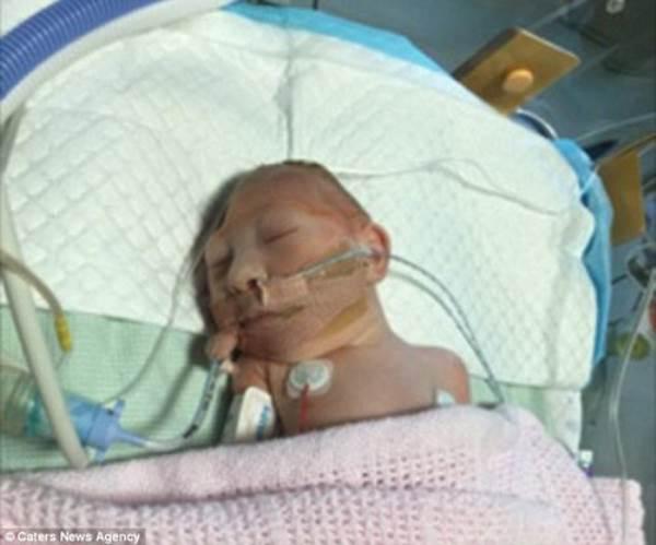 Bé gái chào đời với phần đầu thiếu não khiến y học kinh ngạc vì nghị lực sống - Ảnh 1