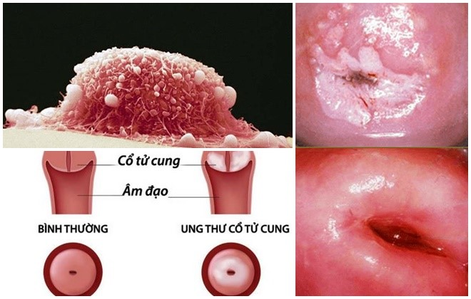 Ung thư cổ tử cung: Bác sĩ cảnh báo dấu hiệu 'vàng' phát hiện bệnh  - Ảnh 2