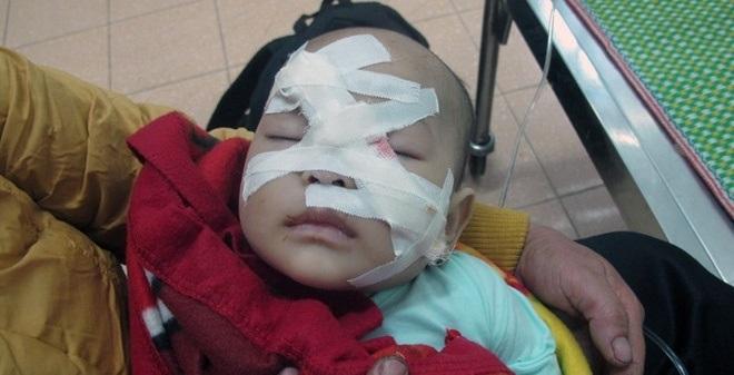 Bé 6 tháng tuổi cùng mẹ bị chú ruột chém tại Nghệ An bây giờ ra sao?