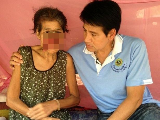 Tự chữa trị đau răng ở nhà bằng thuốc dân gian, bà cụ 55 tuổi bị biến dạng nửa khuôn mặt - Ảnh 2