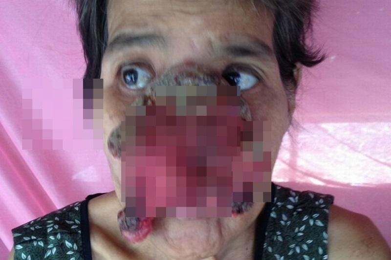 Tự chữa trị đau răng ở nhà bằng thuốc dân gian, bà cụ 55 tuổi bị biến dạng nửa khuôn mặt - Ảnh 1