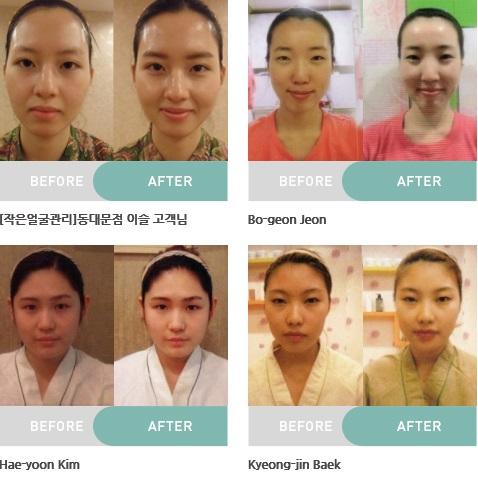 Liệu pháp làm đẹp nổi tiếng Golki của Yakson Beauty lần đầu tiên xuất hiện tại Việt Nam - Ảnh 3