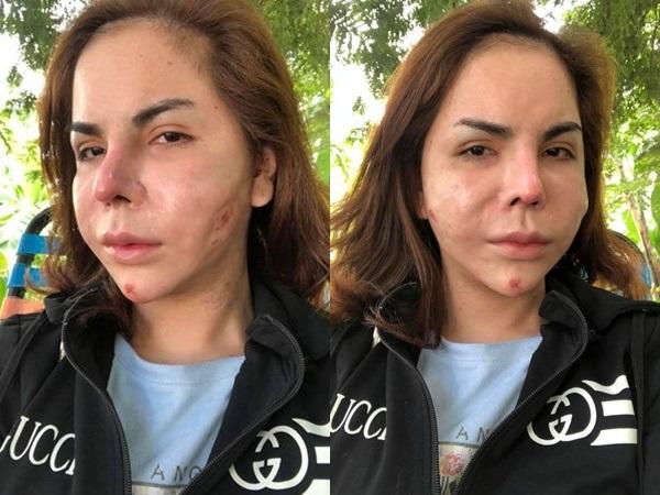 Phát hoảng với gương mặt biến dạng của 'hot girl chuyển giới' Linda sau phẫu thuật thẩm mỹ - Ảnh 2
