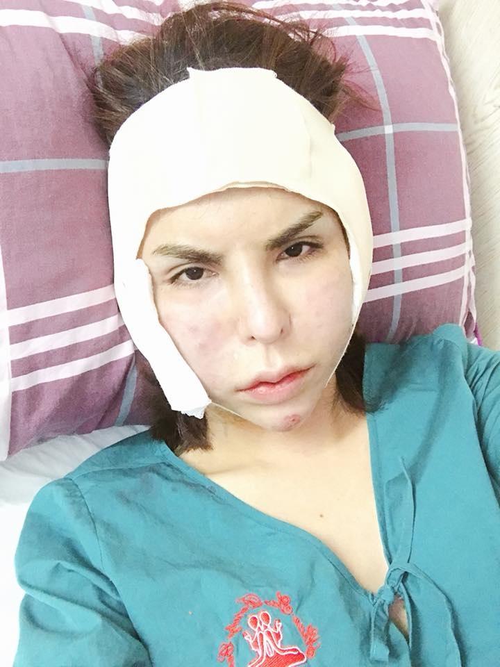 Phát hoảng với gương mặt biến dạng của 'hot girl chuyển giới' Linda sau phẫu thuật thẩm mỹ - Ảnh 4