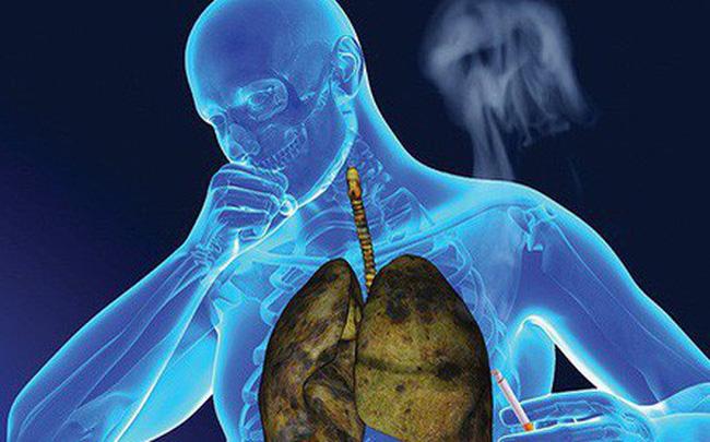 dù bạn có hút thuốc hay không, hãy cảnh giác với những triệu chứng của ung thư phổi để đảm bảo sức khỏe luôn được an toàn