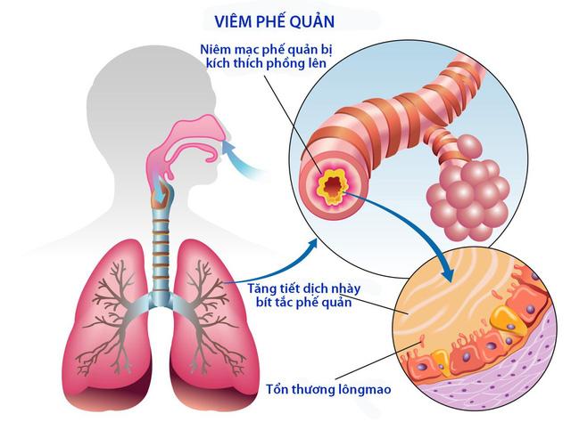 Viêm phế quản liên tục là một trong những dấu hiệu cho thấy bạn có nguy cơ mắc ung thư phổi