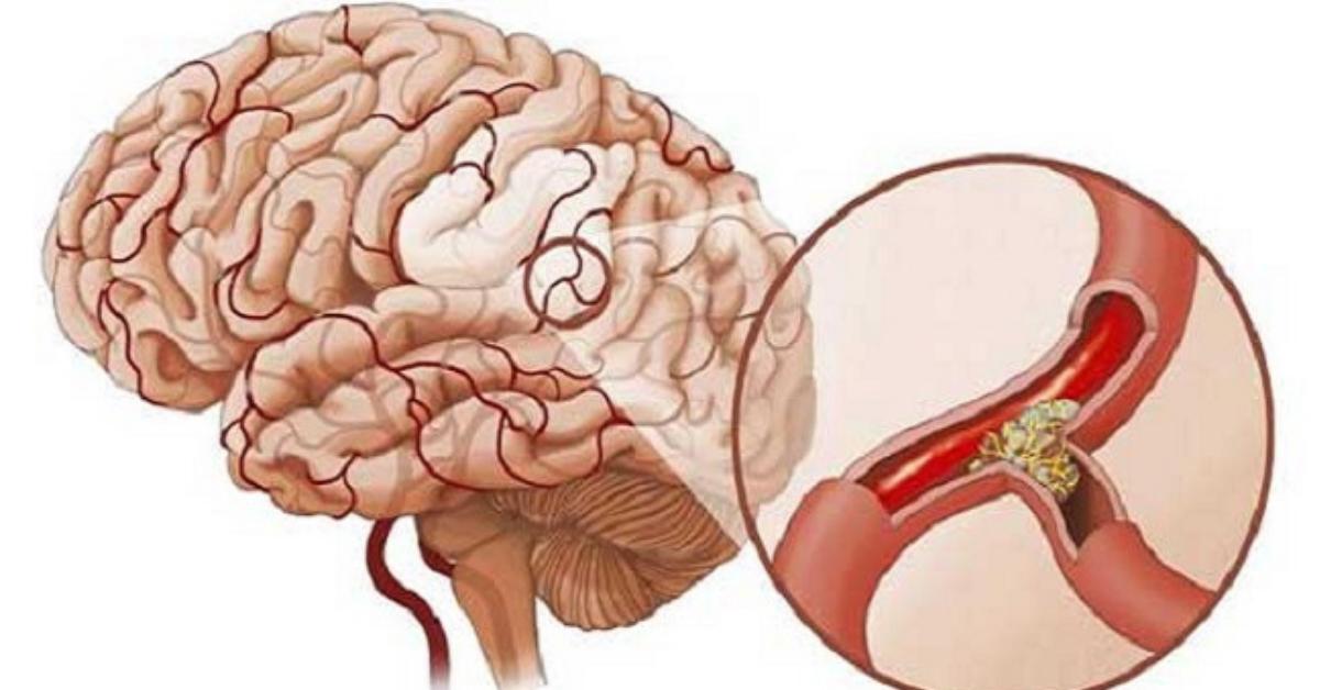 Bác sĩ chia sẻ: Các dấu hiệu nhận biết sớm tai biến mạch máu não - Ảnh 1