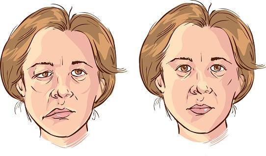 Bác sĩ chia sẻ: Các dấu hiệu nhận biết sớm tai biến mạch máu não - Ảnh 3