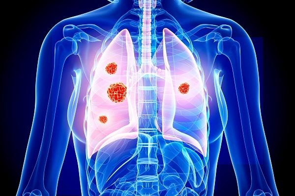 7 loại ung thư phổ biến ở phụ nữ - Ảnh 3
