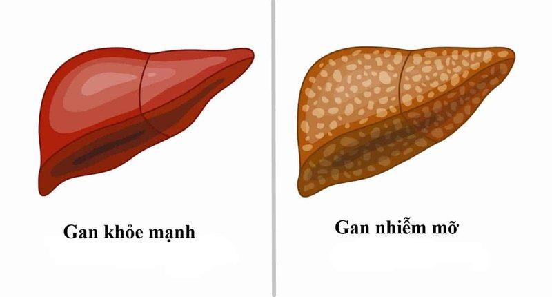 Gợi ý chế độ ăn cho người gan nhiễm mỡ giúp cải thiện bệnh rõ rệt - Ảnh 1