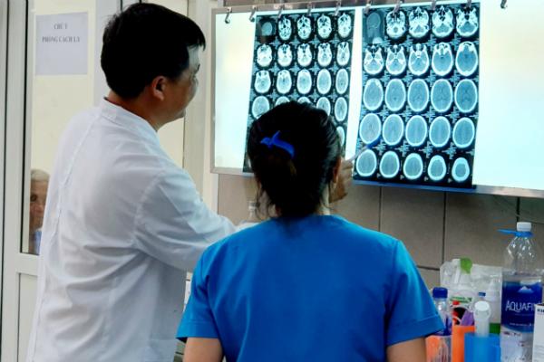 Chuyện chưa từng có tại Việt Nam: Thanh niên 27 tuổi bị xuất huyết não sau khi hít ma túy đá  - Ảnh 1