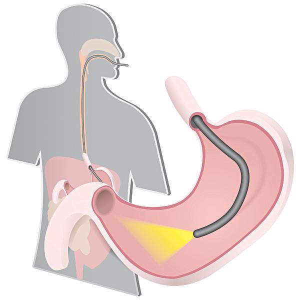 Xuất huyết tiêu hóa: Biến chứng của loét dạ dày - tá tràng ở trẻ em - Ảnh 2