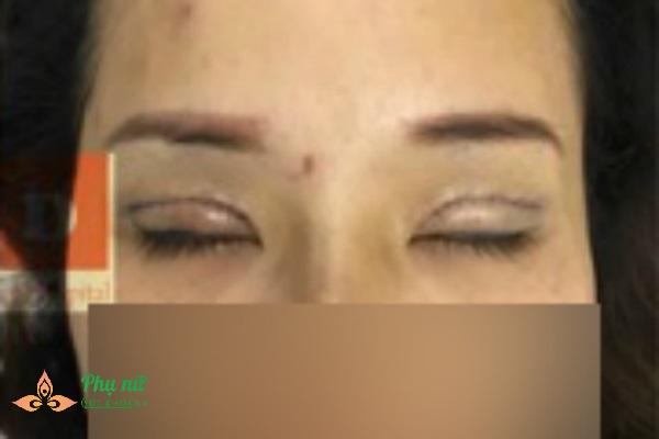 Cô gái bị thủng mi mắt, hở nhãn cầu vì ham cắt mí giá rẻ tại spa - Ảnh 3