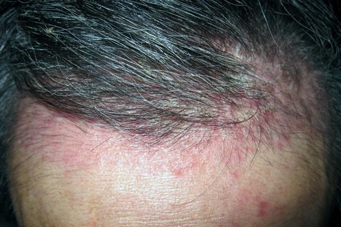 Cứ để tóc ướt đi ngủ đi, sau vài lần bạn sẽ khóc thét với hậu quả kinh hoàng - Ảnh 4