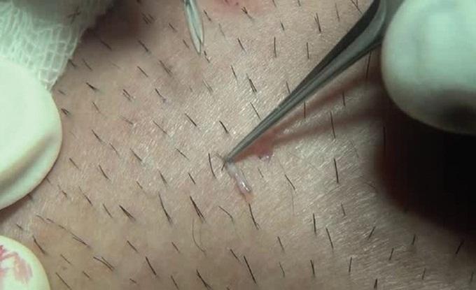 Những hậu quả khôn lường khi nhổ lông nách bằng nhíp - Ảnh 1