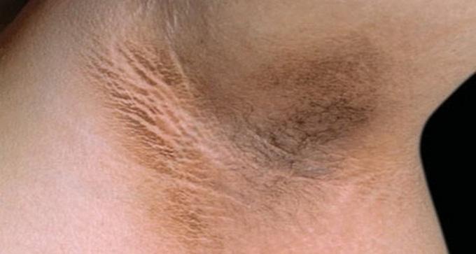 Những hậu quả khôn lường khi nhổ lông nách bằng nhíp - Ảnh 2