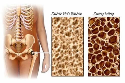 Một trong những biến chứng nguy hiểm của suy thận giai đoạn cuối là xương bị giòn và dễ gãy
