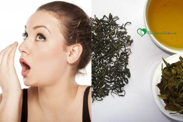 Nguyên nhân gây nên chứng hôi miệng và cách chữa trị - Ảnh 3
