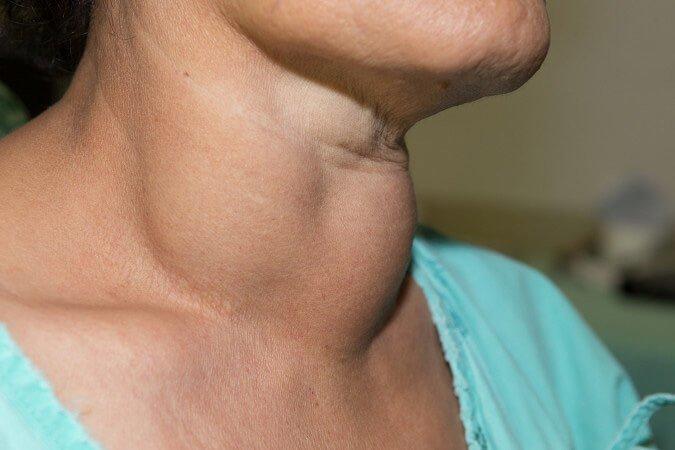 4 người cùng gia đình bị ung thư tuyến giáp, 6 dấu hiệu bệnh không được bỏ qua - Ảnh 1