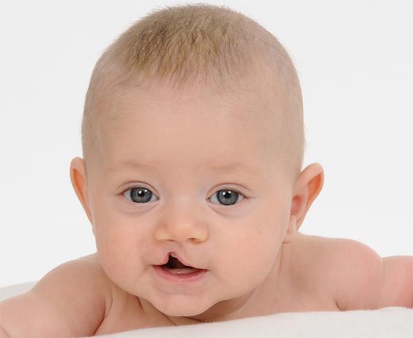 Mẹ đau đớn sinh con ra bị sứt môi vì lỗi không thể tha thứ của chính mình - Ảnh 1