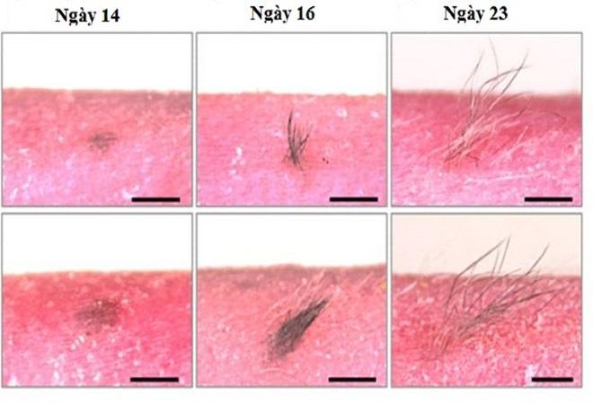 Lớp da nhân tạo cấy ghép cho người bị bỏng hoặc rụng tóc - Ảnh 1