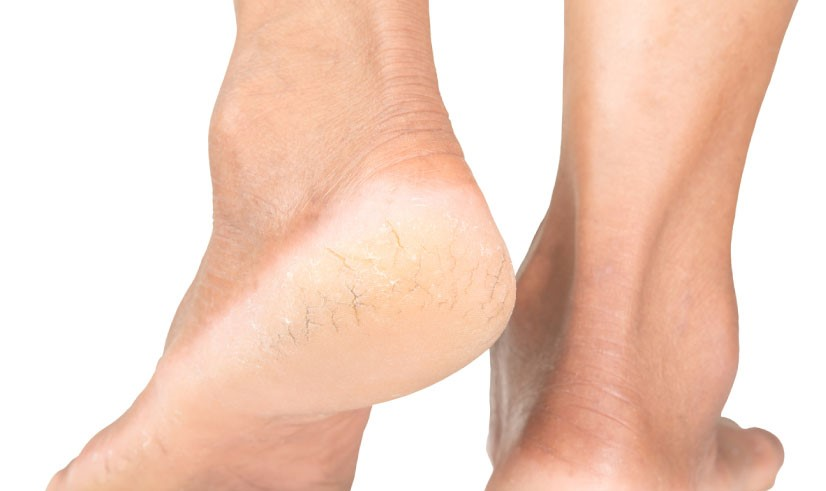 10 dấu hiệu cơ thể ai cũng nghĩ hoàn toàn bình thường nhưng cảnh báo bệnh nan y - Ảnh 6