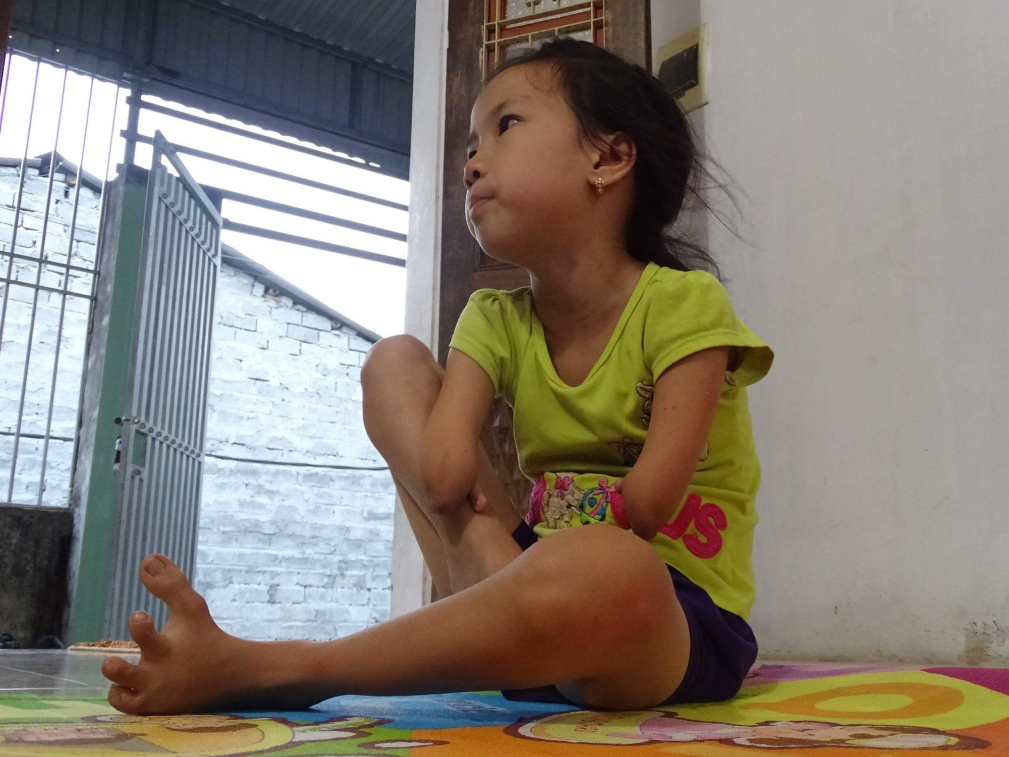 """Nghị lực phi thường của cô bé """"chim cánh cụt"""" 8 tuổi - Ảnh 6"""