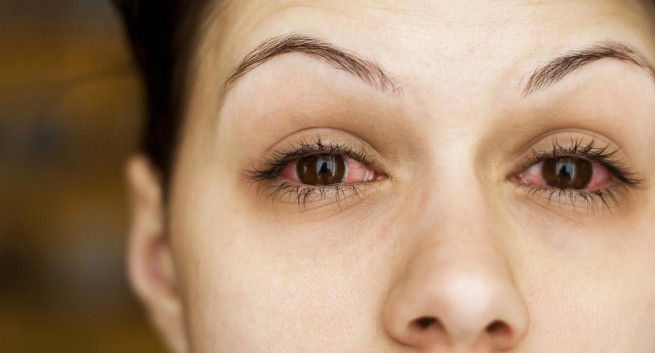 Hội chứng đau nửa đầu có thể dẫn đến hiện tượng khô mắt - Ảnh 2