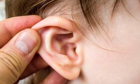 Tăng khả năng suy giảm thính lực do viêm tai giữa ở trẻ em - Ảnh 1