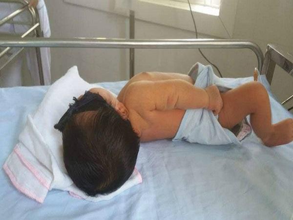 Em bé 8 ngày tuổi phải thay máu hoàn toàn do bị vàng da - Ảnh 1