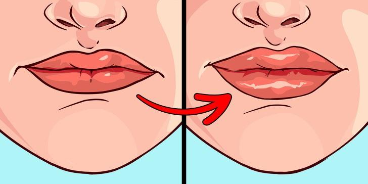 8 sự thay đổi của đôi môi tiết lộ rất nhiều về sức khoẻ - Ảnh 7