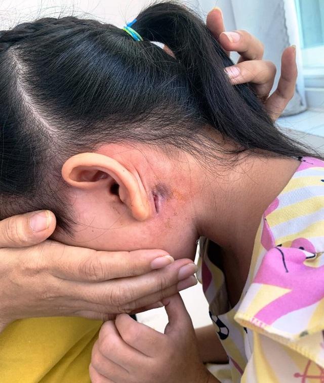 Bé 5 tuổi bị nhiễm vi khuẩn Whitmore, chuyên gia bệnh viện Bạch Mai khuyến cáo cách phòng tránh ai cũng nên biết - Ảnh 1